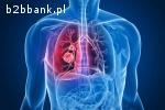 Stowarzyszenie Walki z Rakiem Płuca w Gdańsku